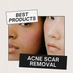 best products for acne scar removal